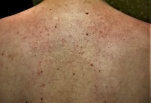 мужская спина с сыпью